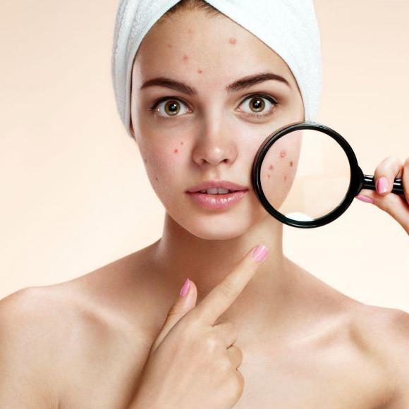 Tratamiento seborrea y acné