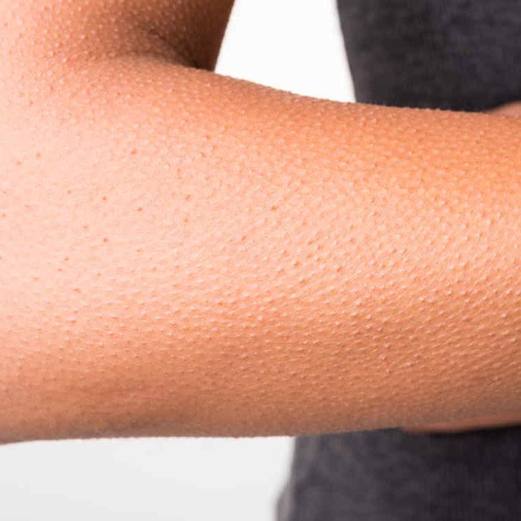 Tratamiento Queratosis Folicular en brazos y piernas