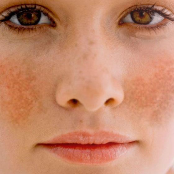 Tratamiento Discromías – Hiperpigmentación