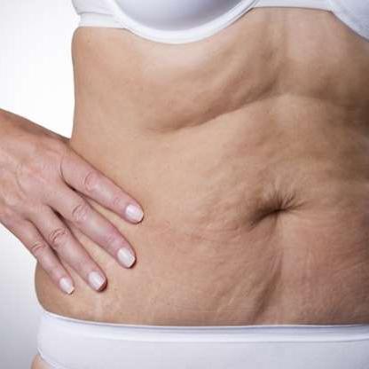 Flaccidez en abdomen, corrección con fango termal y parches PRO-LINE