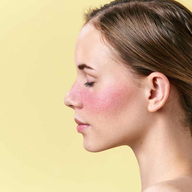 Evolución de la rosácea y la cosmética natural